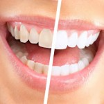 Q&A: Dr. Jeffrey Rappaport On Teeth Whitening