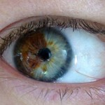 Turn Brown Eyes Blue With Lasers