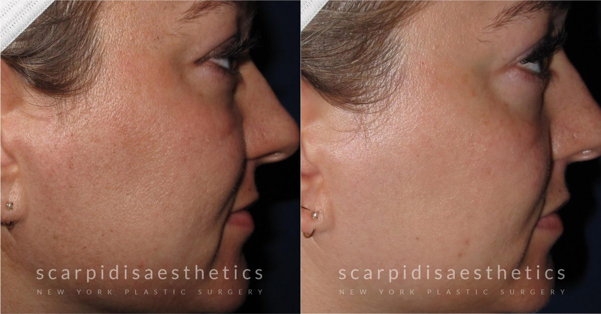 I Tried It: The Halo Hybrid Fractional Laser